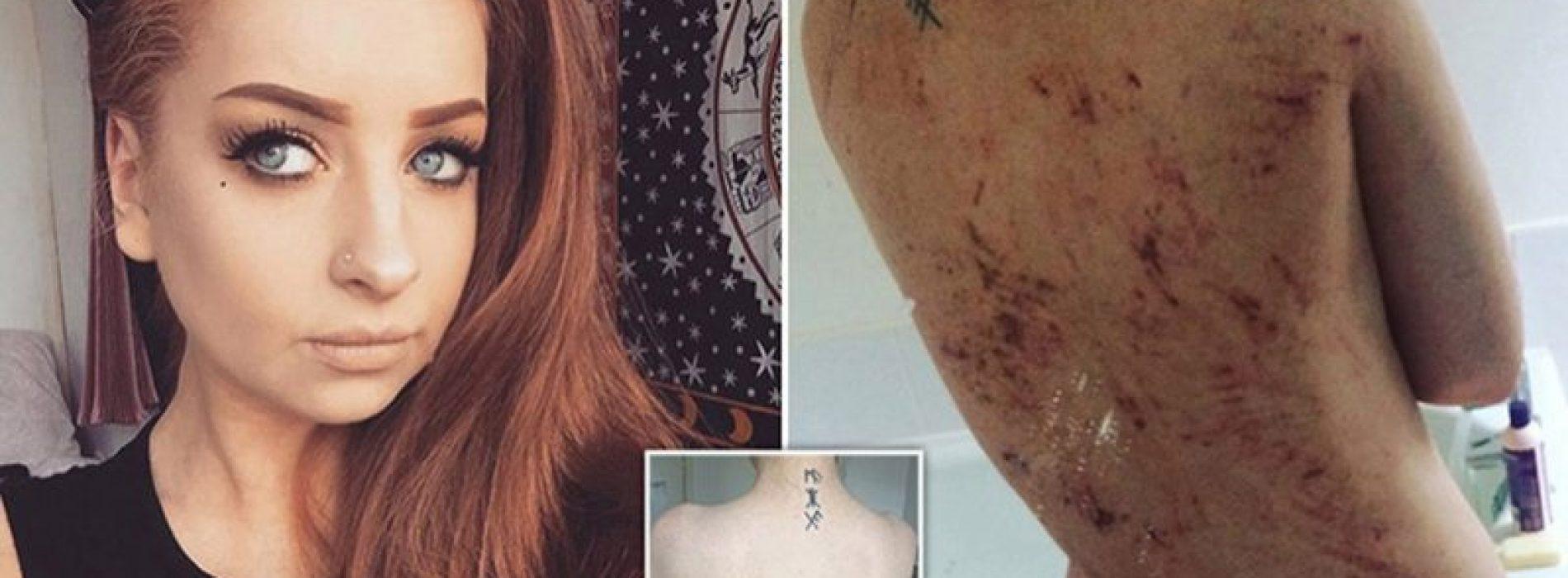 Vrouw, 26, met eczeem Al haar leven is bijna genezen na het veranderen van haar dieet