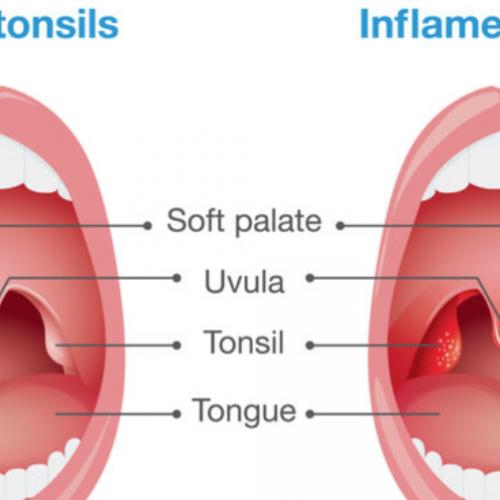 10 eenvoudige maar effectieve huismiddeltjes voor tonsillitis
