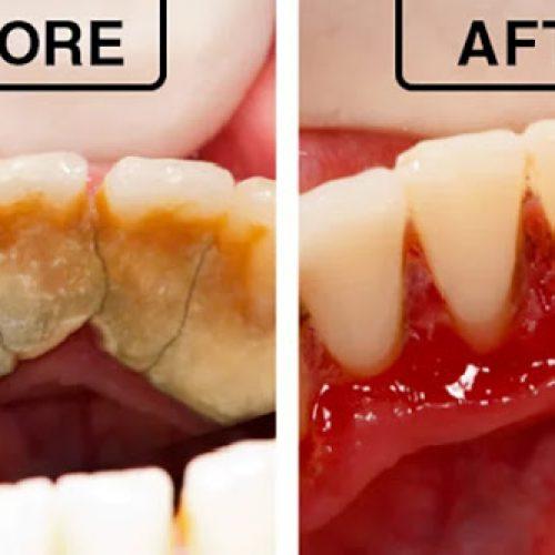 4 mengsels die tandplak volledig van uw tanden verwijderen
