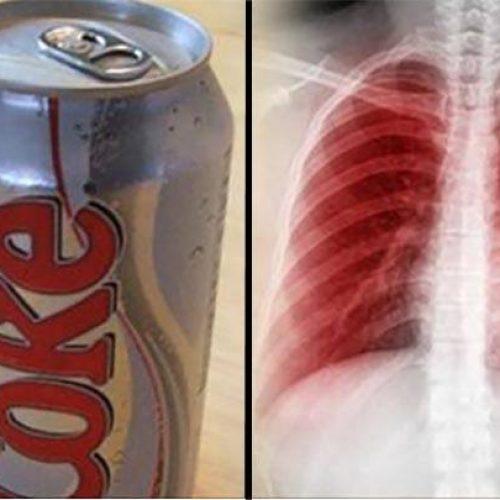 Dit gebeurt er met je longen, hersenen, nieren, tanden en stemming gebeurt als je light frisdrank drinkt