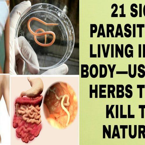 21 tekens dat er parasieten leven in je lichaam – Gebruik deze kruiden om ze te doden