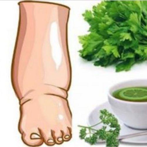 Deze krachtige zelfgemaakte thee zal gezwollen benen in enkele dagen genezen