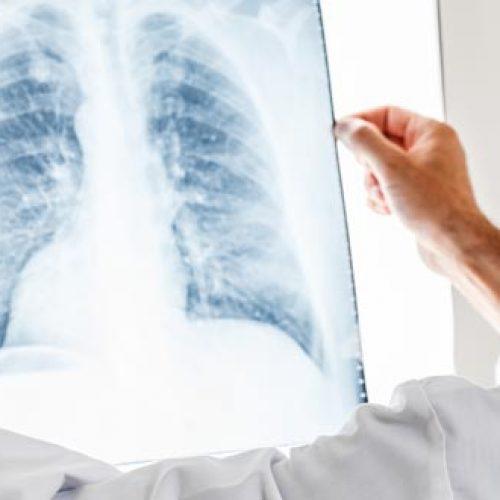 Longontsteking genezen in 3 uur met behulp van natuurlijke geneeskunde