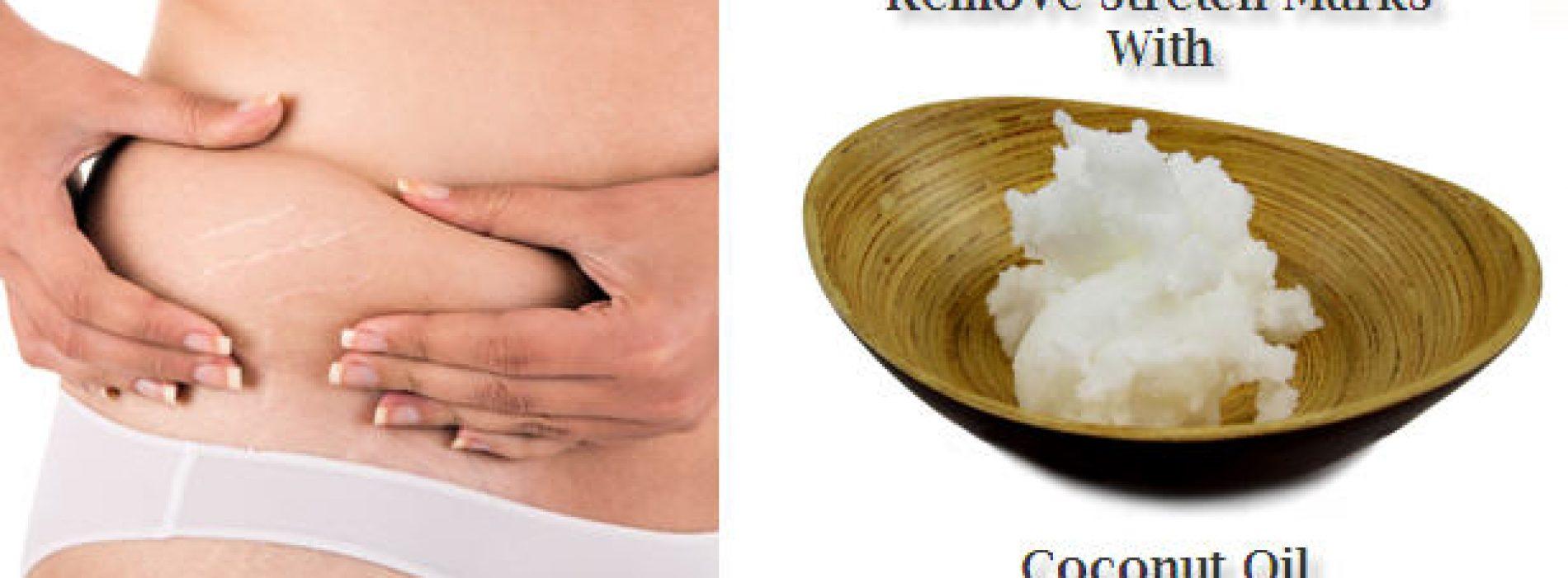 Kokosolie tegen Striae