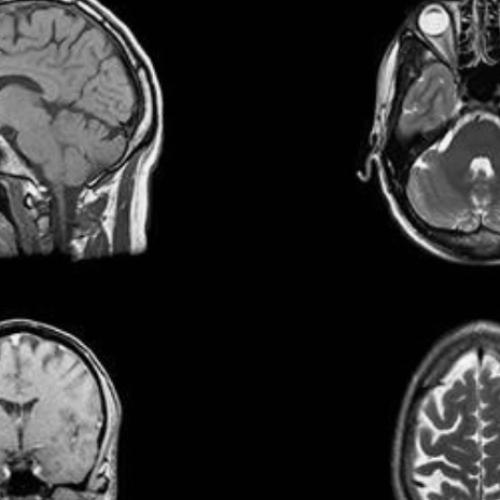 Oudere mensen kunnen evenveel nieuwe hersencellen produceren als tieners, zegt onderzoek