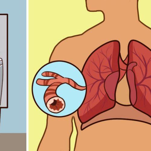 Voorkom een astma-aanval door deze triggers te vermijden