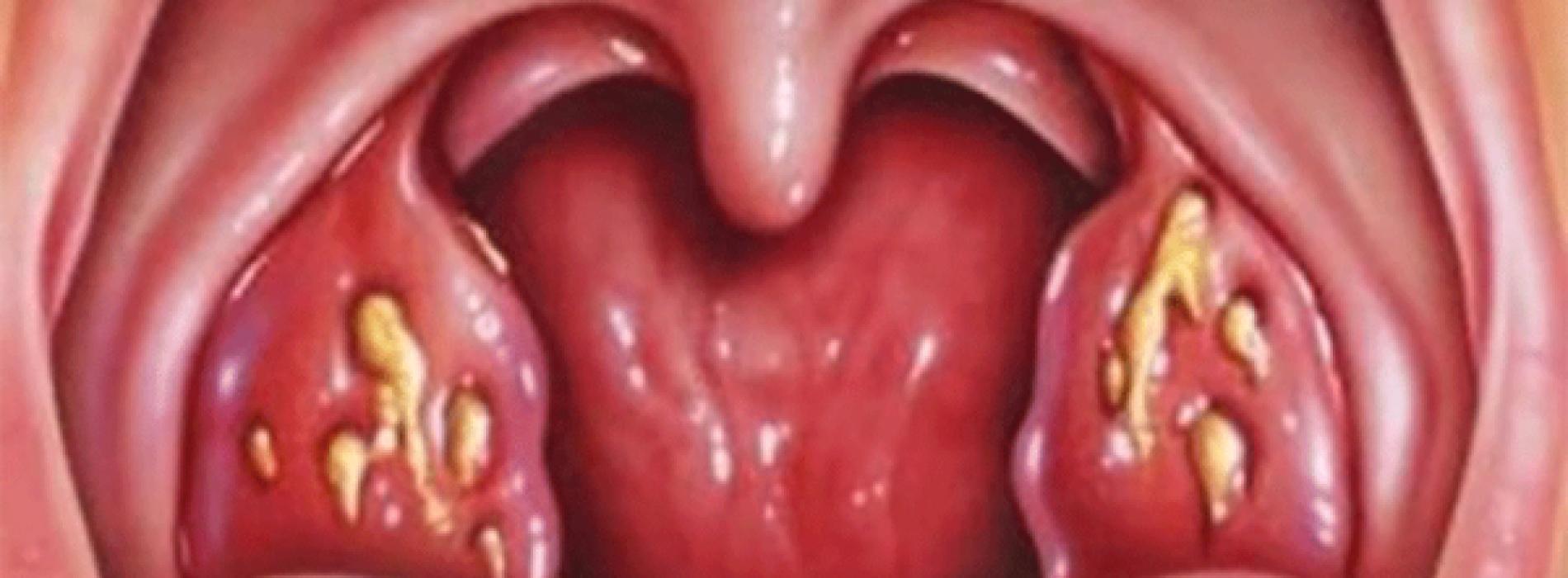 Natuurlijke remedie die keelpijn in slechts 4 uur verlicht (video en recept)