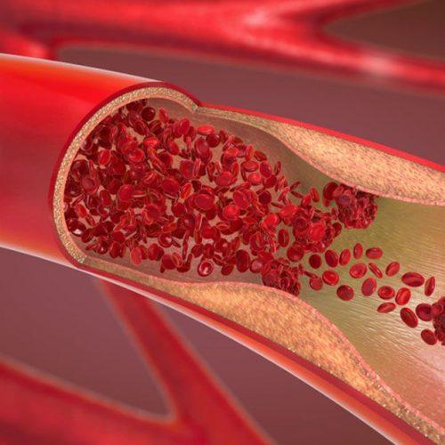 8 manieren om cholesterol en hoge bloeddruk te bestrijden