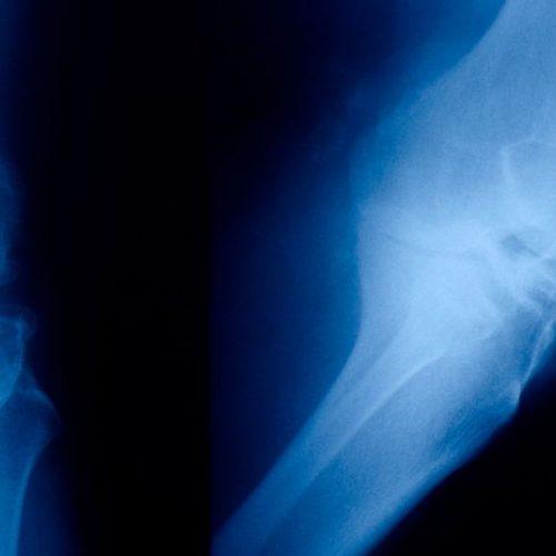 """Artrose patiënten kunnen """"verliefd worden"""" op deze oude therapie"""